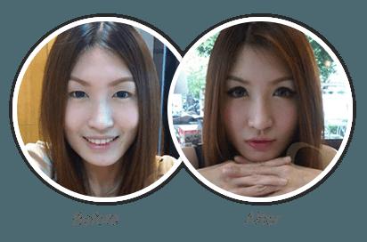 Double-Eyelid_8