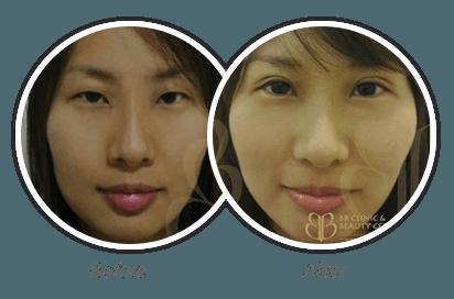 Double-Eyelid_9