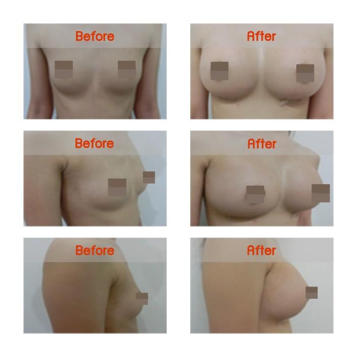 breast-b1