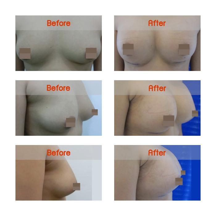 breast-b7