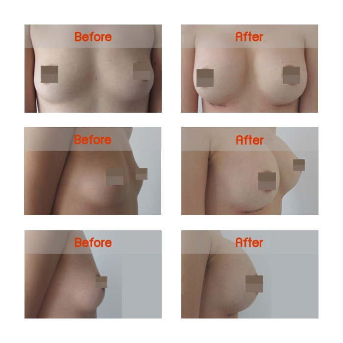 breast-b9