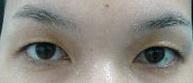 ลักษณะจมูกที่สามารถทำตาสองชั้นแบบเกาหลีได้