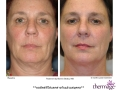 Lower face and neck treatment  by Bonnie Straka, MD. Pre and 2 month follow up. 1.5cm/4 passes/Level 62