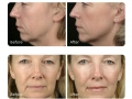 thermage-before-and-after.jpg