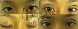 eyelids-surgery-korean-technique-3-300x114