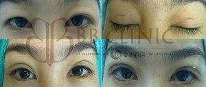 eyelids-surgery-korean-technique-4-300x128