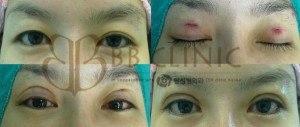 eyelids-surgery-korean-technique-5-300x127