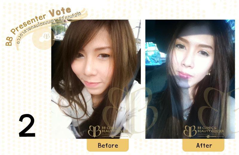 BB-Presenter-Vote-2