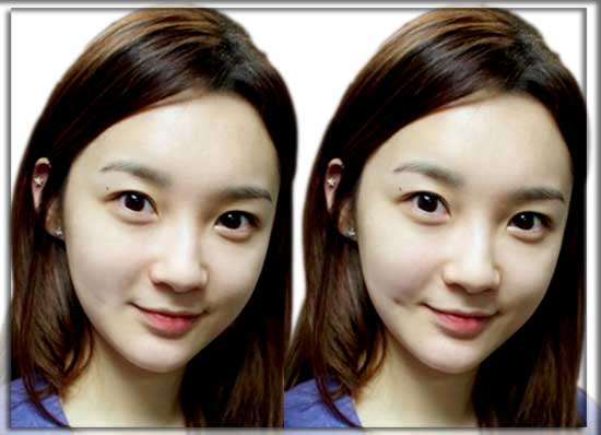 dimple-on-korean-girl-face-2